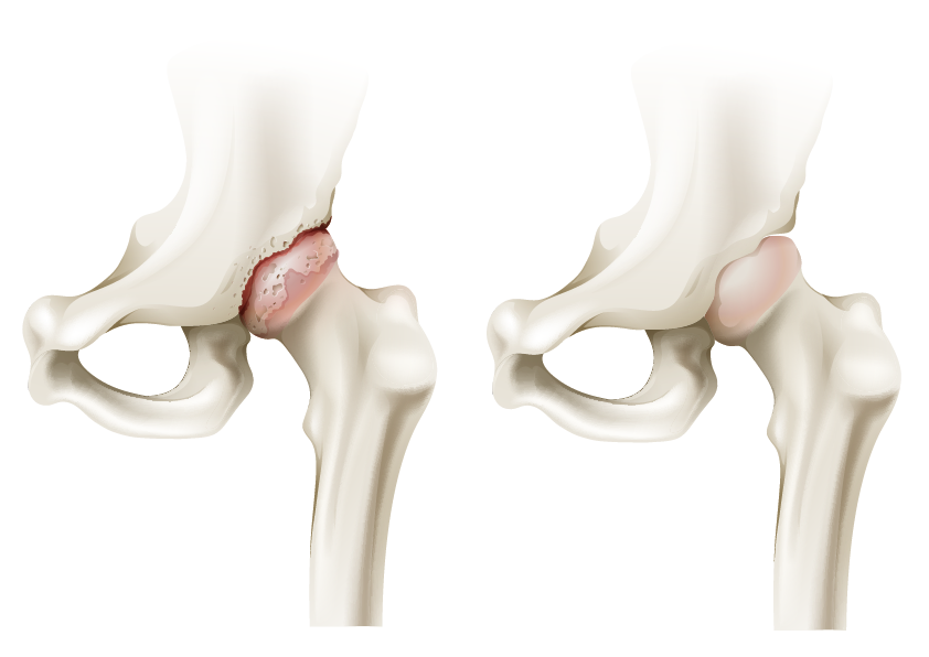 Pathology of the hip